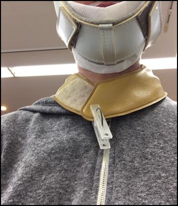 首の牽引治療